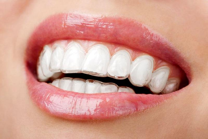 Alineador para ortodoncia invisible de Tecnodent en Bilbao