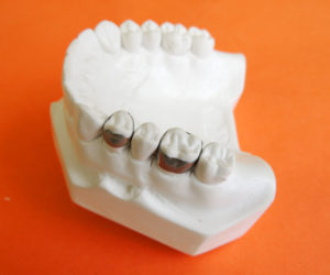 Imagen de bandas lisas en ortodoncia Tecnodent en Bilbao