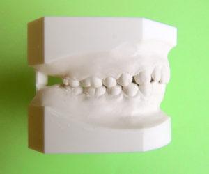Imagen de modelo estudio en ortodoncia Tecnodent en Bilbao