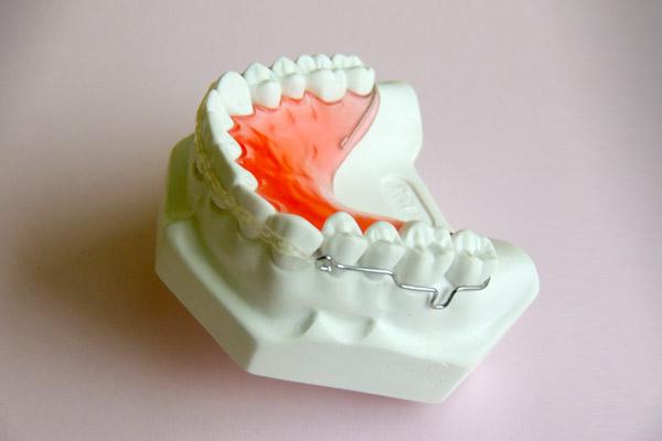Ortodoncia aparato de retención