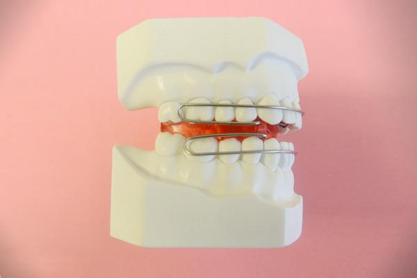 Ortodoncia aparatología funcional