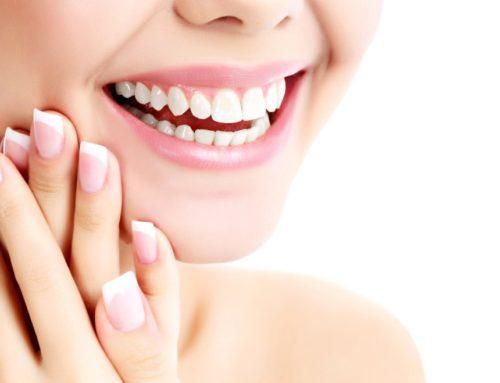 Los retenedores, esenciales tras la ortodoncia